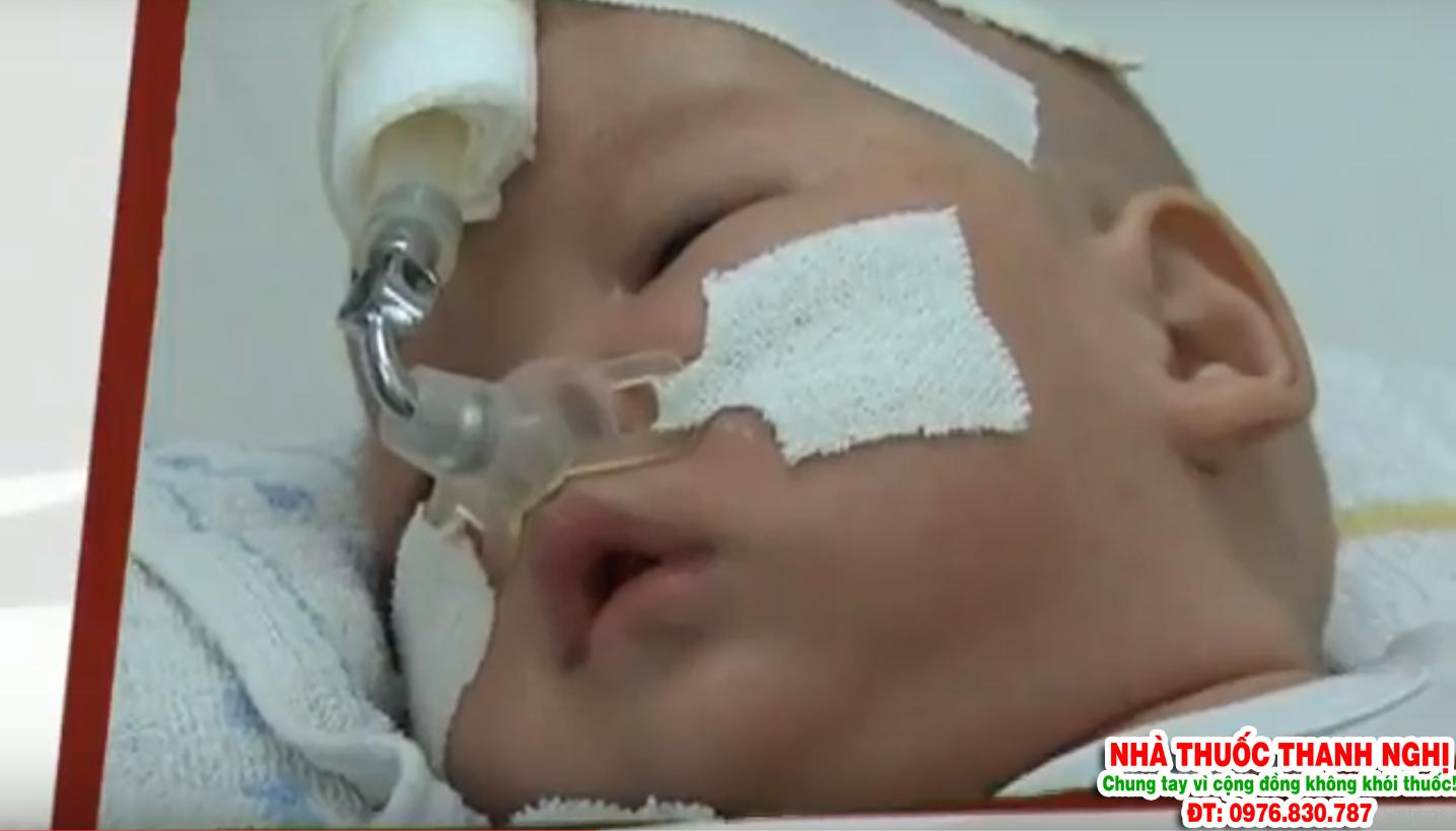 viêm phổi ở trẻ nhỏ